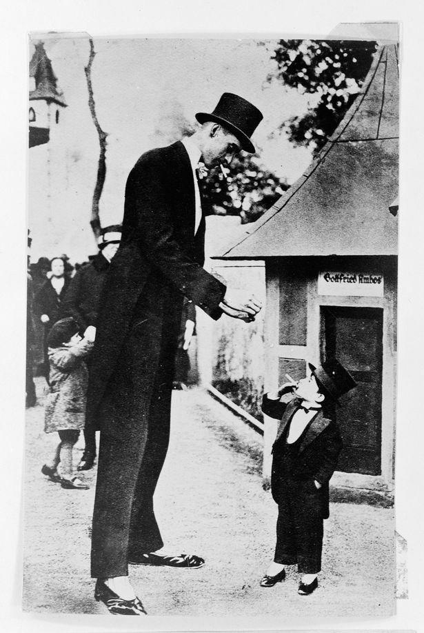"""Người duy nhất thế giới vừa là """"chú lùn"""" vừa là người khổng lồ trong cùng một cơ thể"""