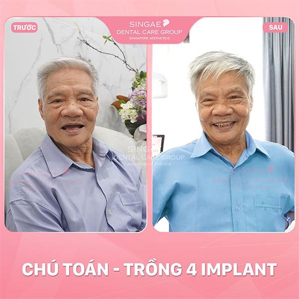 5 ca trồng răng Implant tại Nha khoa Singae gây tiếng vang tại Việt Nam