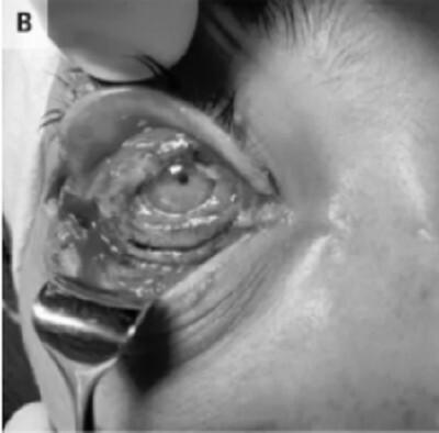 Người phụ nữ có nguy cơ bị mù sau khi lây bệnh đậu bò hiếm gặp từ mèo cưng - ảnh 1