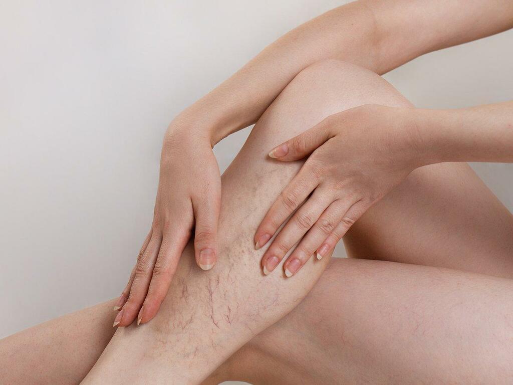 Suy giãn tĩnh mạch chi dưới - một nguyên nhân gây đột quỵ ít người biết - ảnh 1