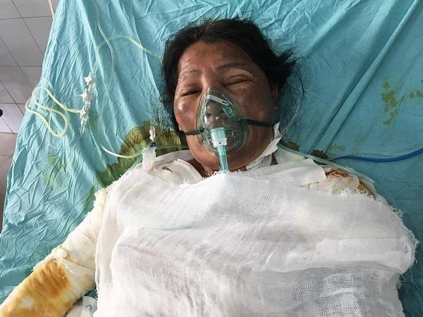 Bạn đọc ủng hộ cô Nguyễn Thị Cảnh bị bỏng lửa hơn 200 triệu đồng