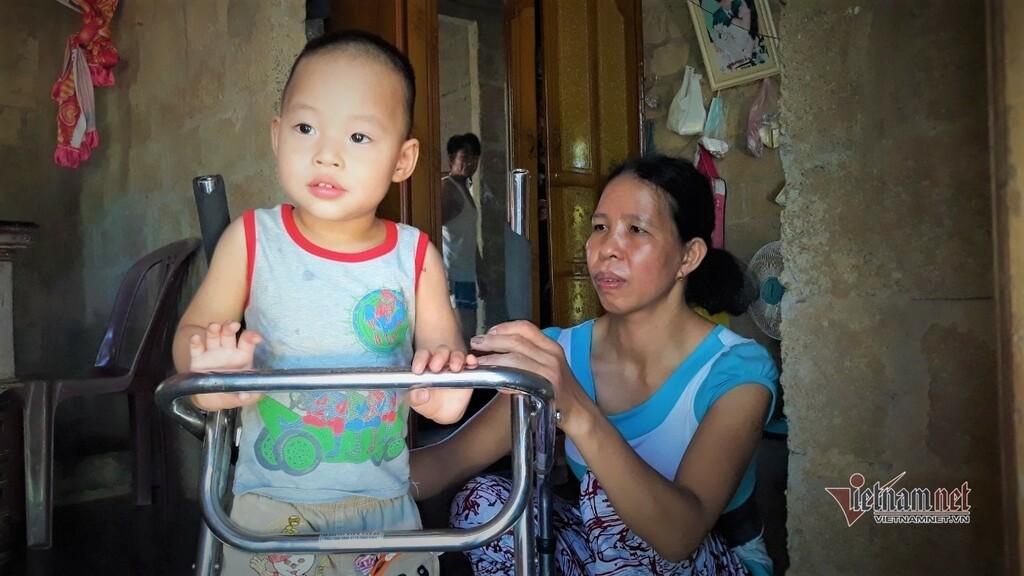 Bị vôi não hoá, bé trai 3 tuổi chật vật lớn lên trong câm lặng - ảnh 1