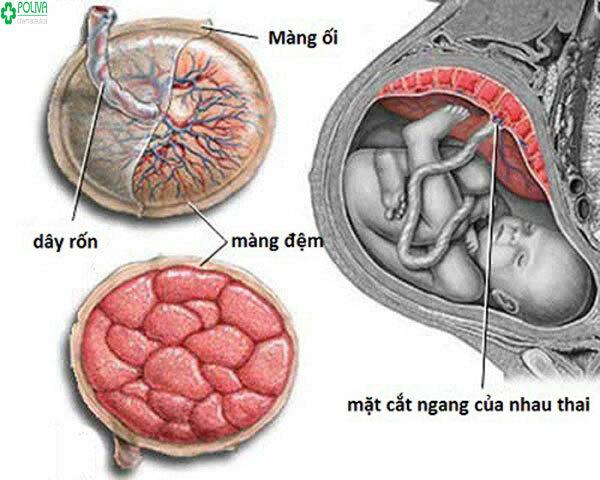 Dây rốn bám màng có ảnh hưởng đến thai nhi không? - ảnh 1