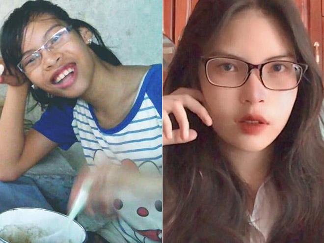 """Bị chê """"miệng nạo được cả quả dừa"""", cô gái thay đổi 360 độ sau khi niềng răng"""
