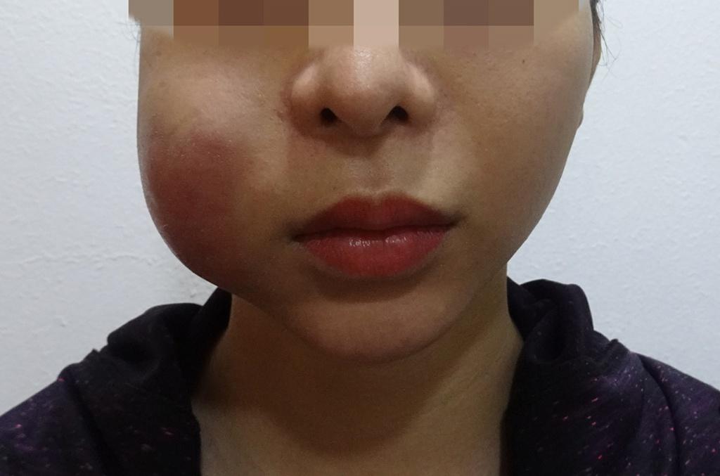Cấp cứu mùa dịch: người hoại tử mặt, kẻ thủng mũi vì làm đẹp tại spa - ảnh 1