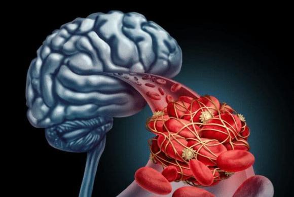 Bác sĩ nhắc nhở: Có 4 thói quen trong đời, nhồi máu não dễ tìm đến bạn hơn, bạn có nằm trong số đó không? - ảnh 1