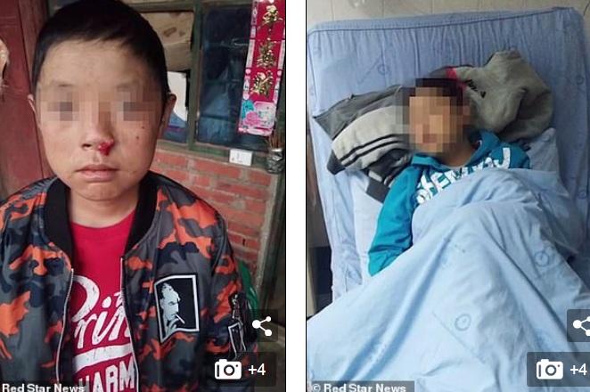 Bé trai 12 tuổi mắc chứng bệnh sợ ánh nắng, chảy máu không ngừng như ma cà rồng