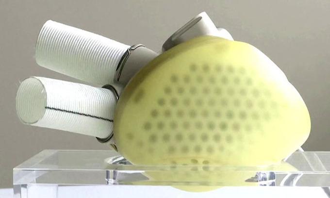 Công ty Pháp bán được trái tim nhân tạo hoàn thiện đầu tiên