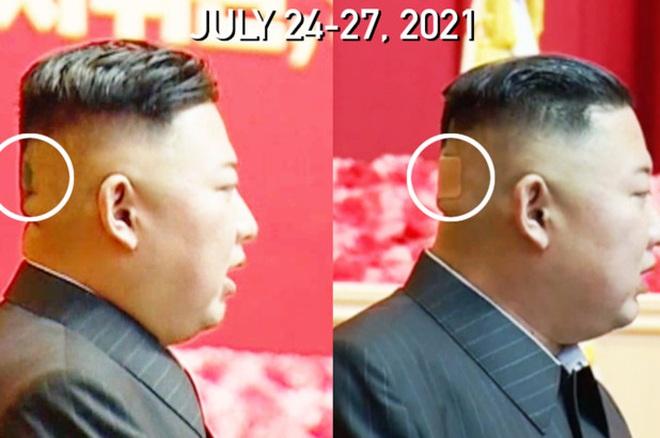 Băng dán y tế trên đầu ông Kim Jong-un gây chú ý
