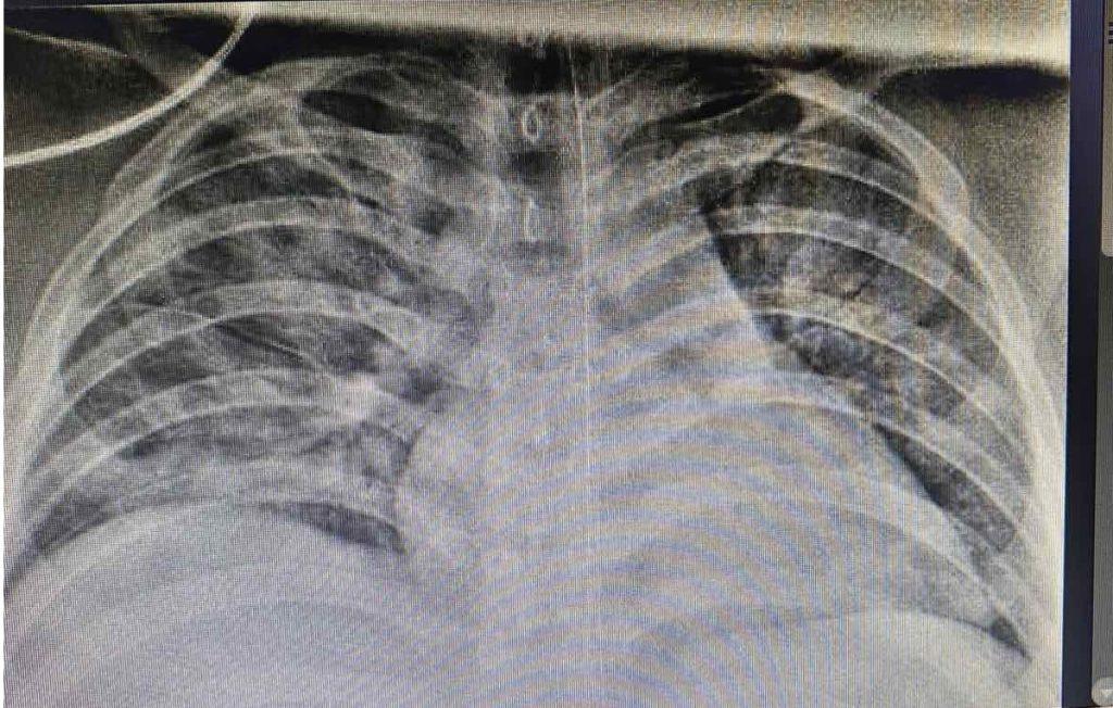 Bệnh nhi nặng 90kg nguy kịch vì mắc Covid-19 được điều trị khỏi