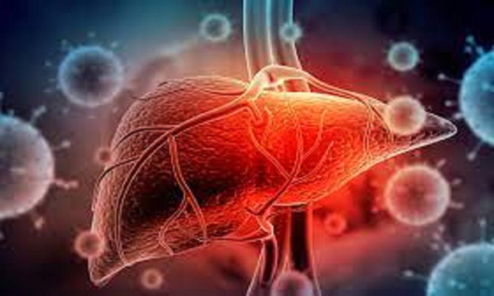 Những lưu ý đặc biệt đối với bệnh nhân viêm gan nếu mắc COVID-19