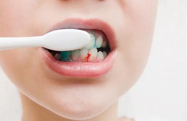 5 dấu hiệu ở miệng cho thấy gan đang bị tổn thương, nếu có dù chỉ 1 cái bạn cũng nên đi khám ngay
