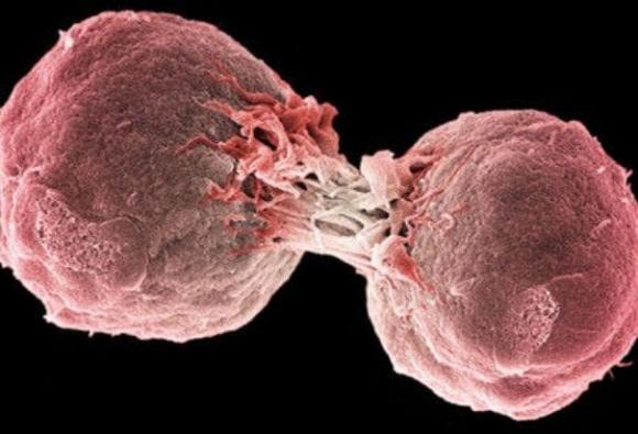 """Có bệnh trong người, đại tiện là """"tiên tri"""", nếu thấy 3 """"vật"""" trong lúc đại tiện, đó có thể là tế bào ung thư đang """"phóng thích"""""""