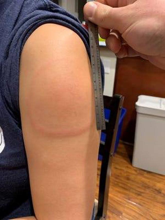 """Hỏi đáp vắc xin: Điều trị """"Cánh tay Covid"""" có giảm hiệu quả vắc xin?"""