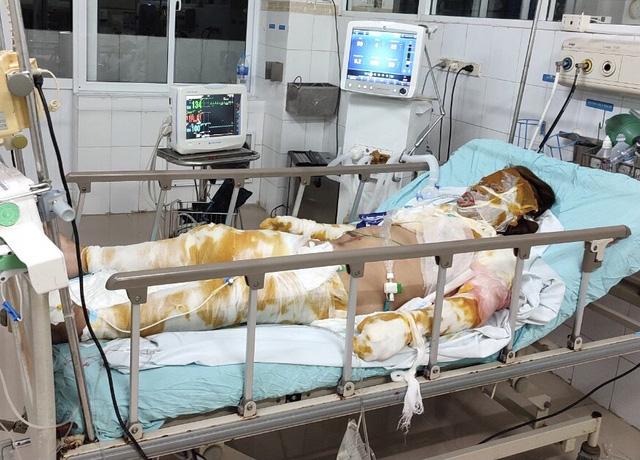 Xót xa mẹ nguy kịch vì bỏng nặng, hai con nhỏ không người chăm sóc phải gửi hàng xóm - ảnh 1