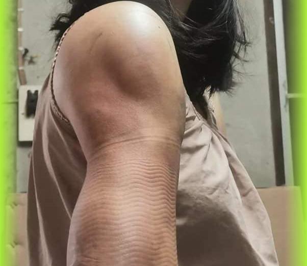 Từ vụ cánh tay lồi lõm, mất thẩm mỹ sau khi hút mỡ làm đẹp, chuyên gia khuyến cáo những điều nên và không nên