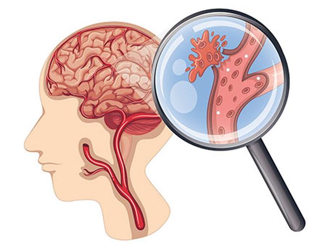 Phòng tránh tăng huyết áp gây xuất huyết não