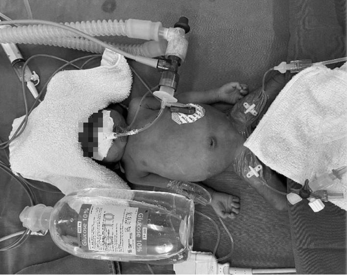 Hy hữu: Phẫu thuật cứu trẻ 26 ngày tuổi, nặng 1kg mắc tim bẩm sinh còn ống động mạch