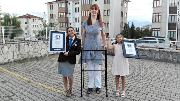 Chân dung cô gái cao nhất thế giới hiện nay: Thân hình khổng lồ trên 2m nhưng phải ngồi xe lăn, nghị lực từ sự dò xét của người đời