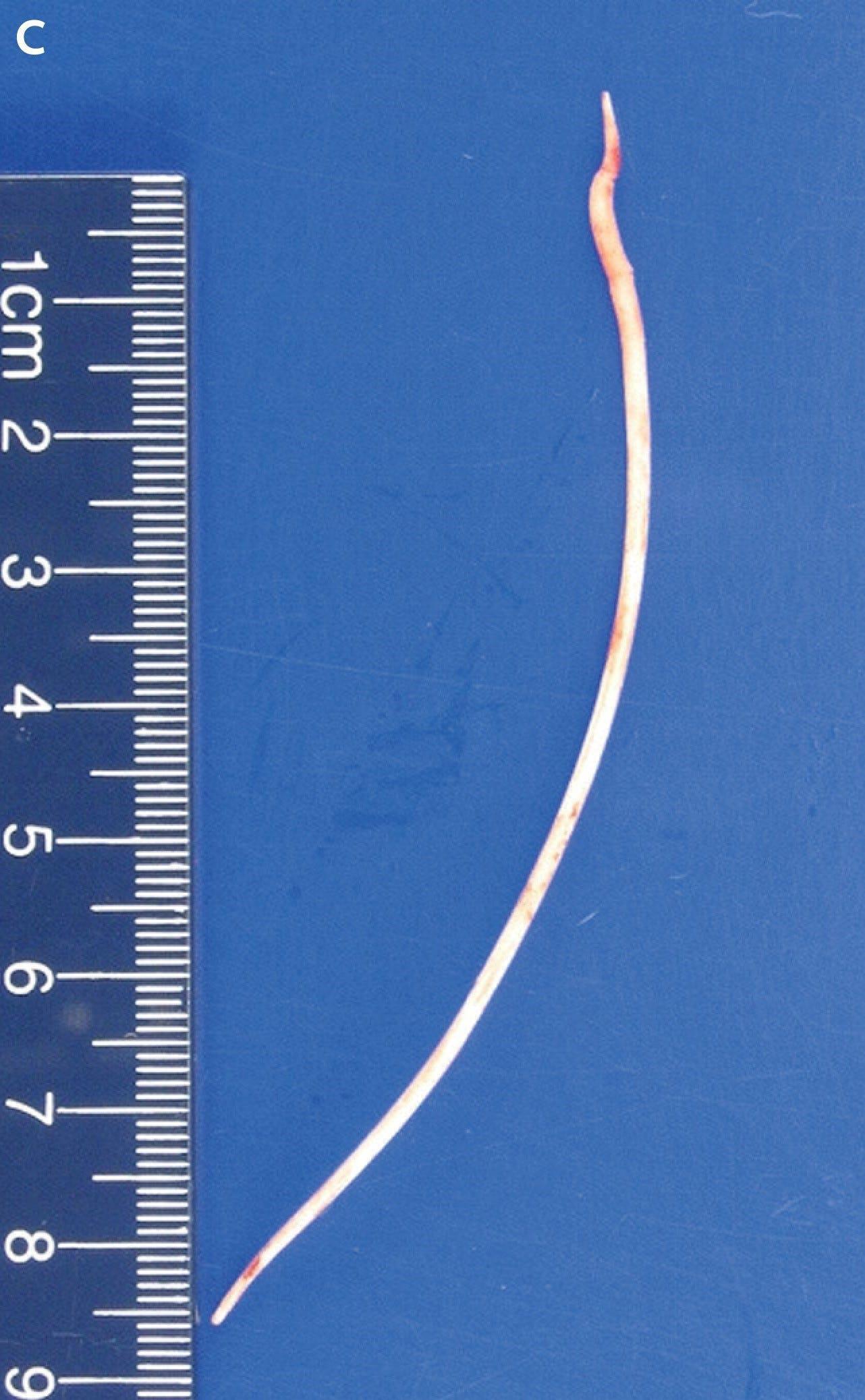 Bác sĩ sốc khi tìm thấy mảnh xi măng 10cm trong tim bệnh nhân - ảnh 1