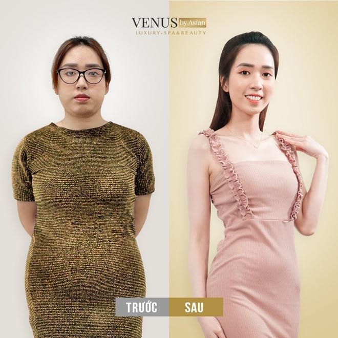 Chuyển giao công nghệ giảm béo đa tầng MaxBurning tại Phòng khám thẩm mỹ Venus by Asian - ảnh 1